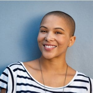 Female Pattern Baldness, its Causes, and Cures